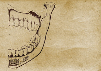 Jaw Illustration (from late 1800)