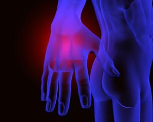 dolor en la mano