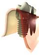 Implantat-Zahnwurzel