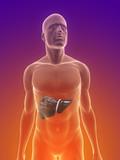 männlicher Körper mit Tumor in der Leber poster