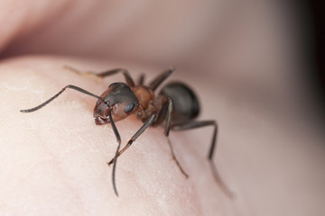 Ant biting skin on human hand.