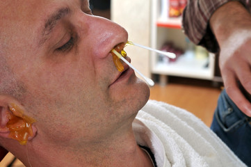 Epilation wax applied to an adult man's nose and ears