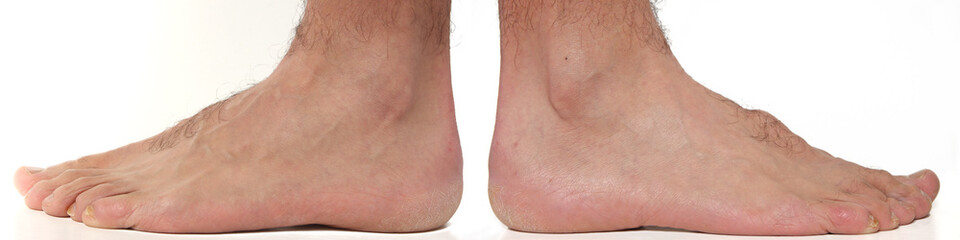 External Feet and ankle