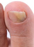 Left foot toe nail suffering from fungus infection. poster