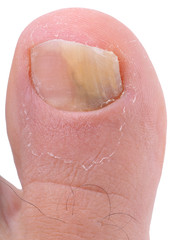 Left foot toe nail suffering from fungus infection.