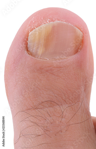 Right foot toe nail suffering from fungus infection.