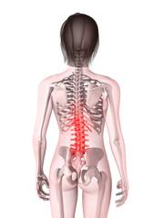 weibliches Skelett mit schmerzender Wirbelsäule