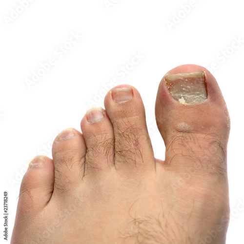 Cracked Fungus Toe Nail