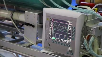 monitor of warm rhythm showing electrocardiograms