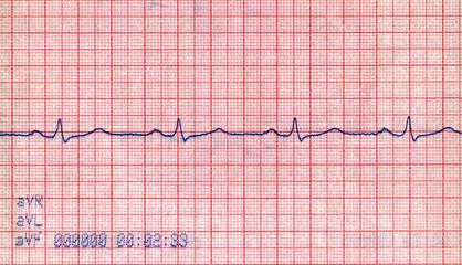 new cardiovascular doppler diagram, pacient stress concept