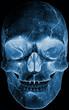front face skull x-ray