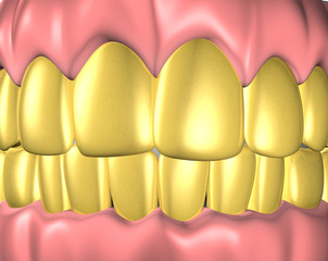 dentadura de oro