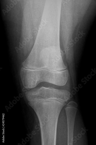 AP x-ray of injured knee