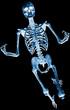 skeleton celebrate xray