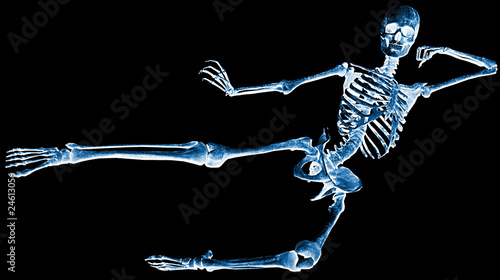 skeleton karate kick xray