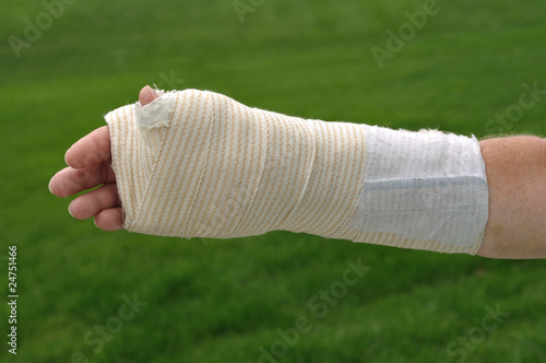 Injured Hand and Arm