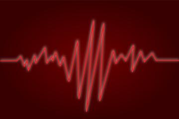 EKG rot