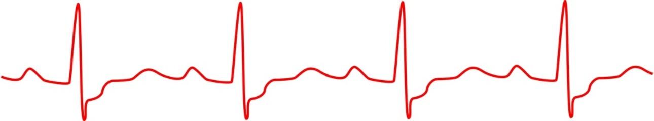 Heartbeat, heart monitor