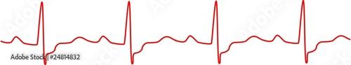 Heartbeat, heart monitor - 24814832