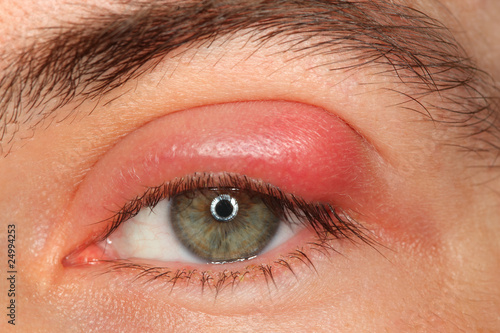 illness person eye with sty and pus looking into camera