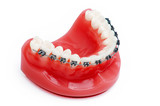 Denture with braces , upper jaw , isolated on white poster