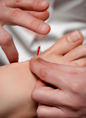 Acupuncture needle being tapped into foot