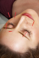 Acupuncture treatment to face