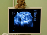 Obstetrician examining pregnant belly by ultrasonic scan. poster