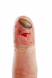 Wound finger poster