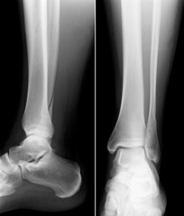 Röntgenbild Unterschenkel