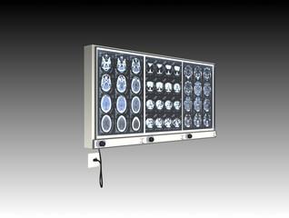 lastre radiografia 3d