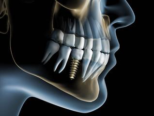 Zahnimplantat 2