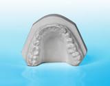 Upper jaw, plaster study model on blue background poster