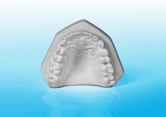Upper jaw, plaster study model on blue background