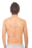 Back of man with chickenpox