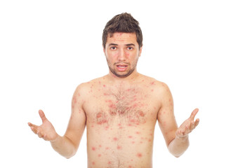 Nervous man with chickenpox
