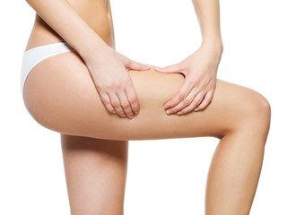 Woman squeezes cellulite skin on her legs