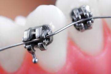 Dental braces super macro ,crooked teeth ,shallow depth of field