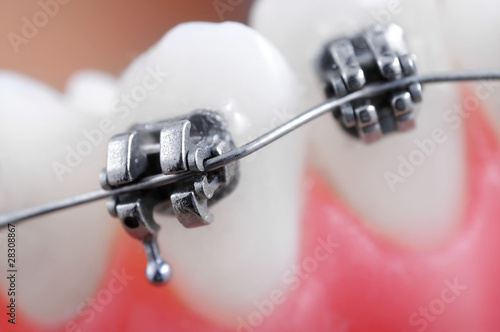 Dental braces super macro ,crooked teeth ,shallow depth of field - 28308867