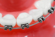 Dental braces super macro ,  shallow depth of field