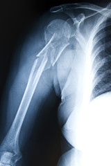 Humerus Fracture - Trauma Xray