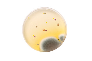 Microbiological plate with bacteria and fungi