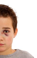 Junge mit blauem Auge und gebrochener Nase