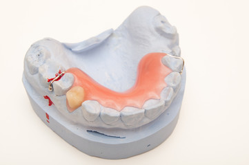 Gebiss - Mandible model