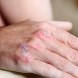 schuppenflechte am  Handknochen