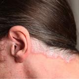 psoriasis - schuppenflechte im Ohr und am Nacken