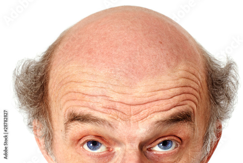 man looking up to his bald head