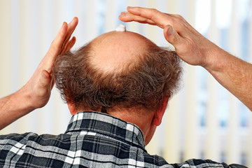 cream on the bald head