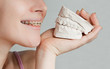 Smile with bracket & plaster jaw model