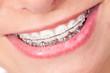 canvas print picture - Mund mit Zahnspange und schönen Zähnen